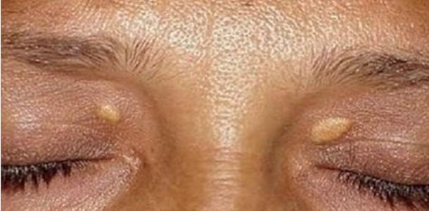 verrugas_-_pele