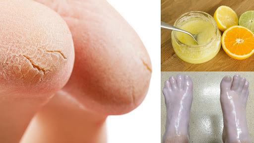 10-remédios-caseiros-para-pés-e-calcanhar-rachados