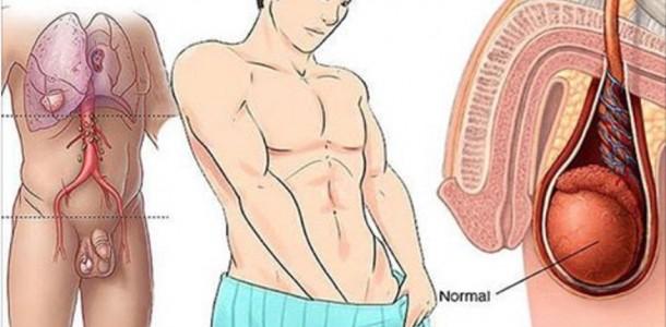 cancer_-_testiculos