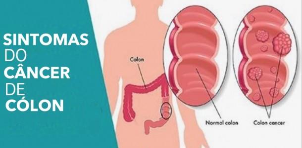 colon_-_cancer_-_sintomas